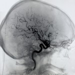 Vandrande stamcell ny måltavla för strokebehandling