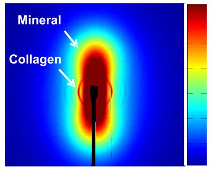 mineralstruktur i ett ben