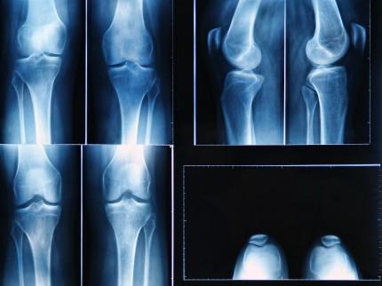 röntgenbild av knä