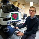 """Han kartlägger """"hjälparcellerna"""" som får tumörer att växa"""