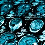 Ny mekanism för att reparera hjärnan efter stroke
