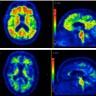 Mota Alzheimers i grind – avancerad teknik spårar tidiga tecken