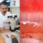Blodkärl i nagelband ger ledtrådar