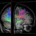 Utvecklar MR för tidig diagnos av hjärntumörer