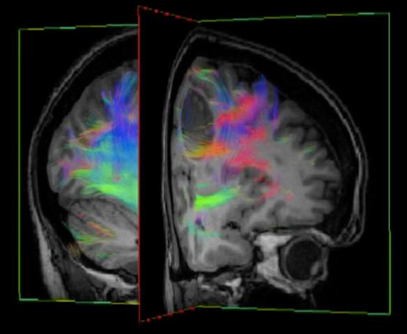 Hjärntumör_Diffusions_MR