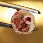 Inflammerat fett skadligt för hjärta och kärl