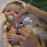 Laser ska hjälpa för tidigt födda barn