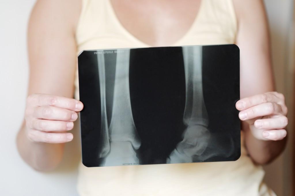 osteoporos_ COLOURBOX2286216