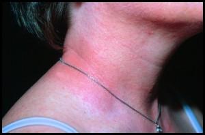 symptom på allergi