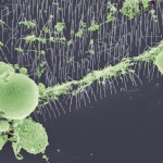 Kan nanoimplantat rädda synen?