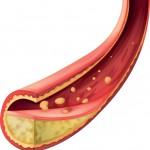 Bra och dåligt kolesterol kartläggs