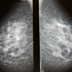 Vanlig medicin kan ha effekt mot bröstcancer