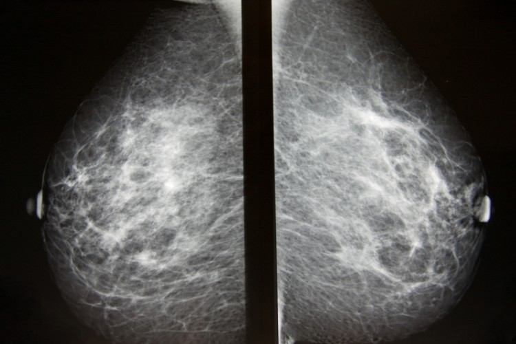 Digital mammography image, screening for breast cancer radiology both breasts_dreamstime_14088686