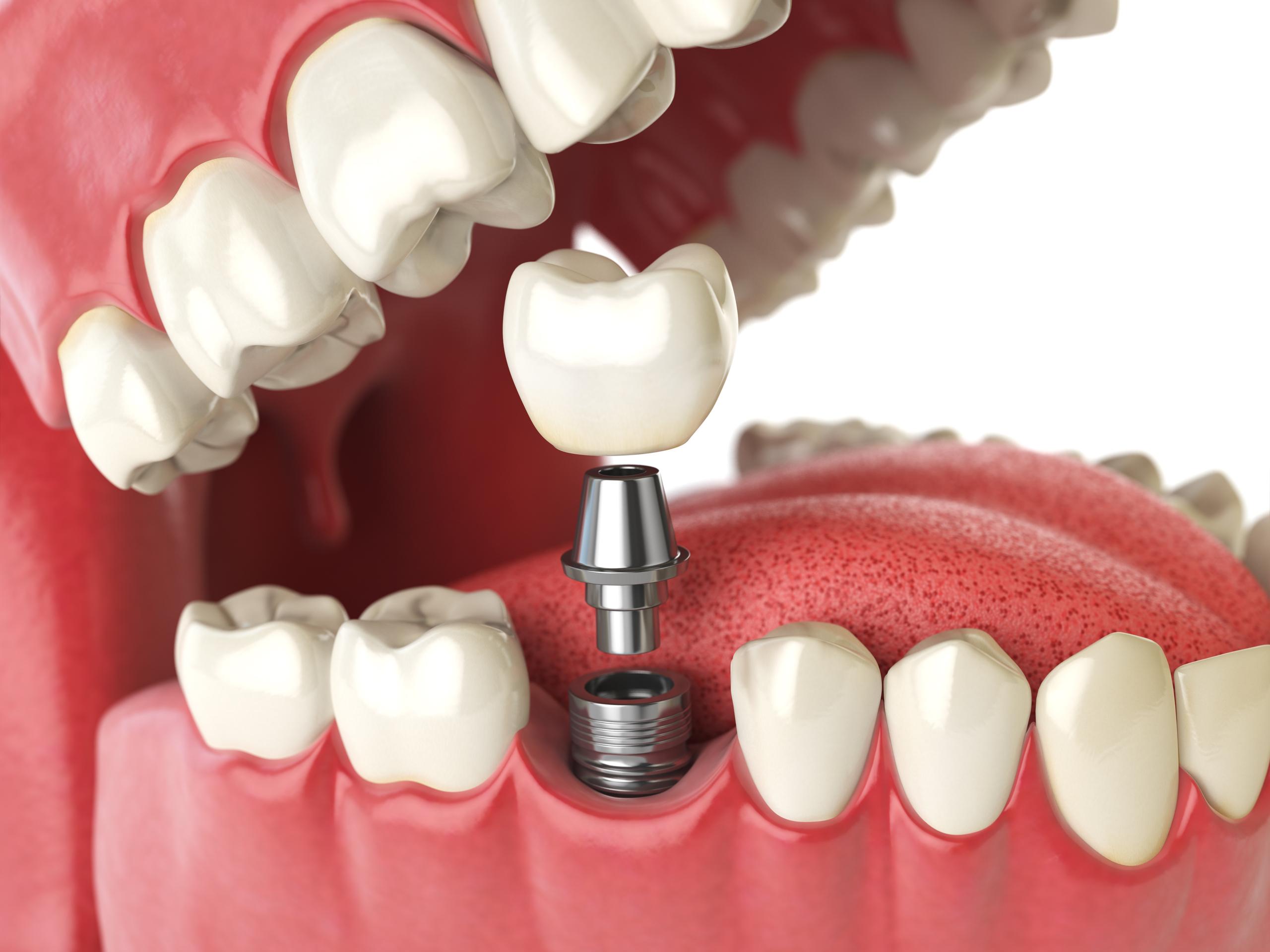 fakta om tänder