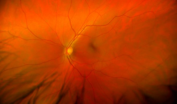 View inside of the human eye showing a healthy retina, optic nerve, and macula.