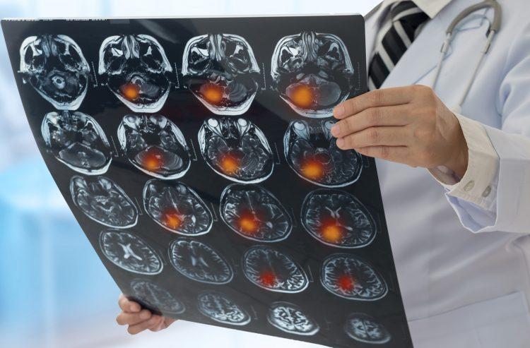vad händer efter en stroke