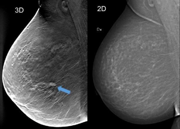 Bilden jämför två mammografibilder, den ena med 3D-teknik, den andra i 2D