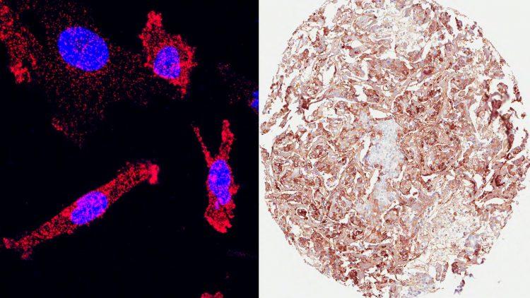 Vänstra bilden: Bröstcancerceller där kärnorna är blå och varje röd punkt motsvarar interaktion mellan COMP och protein som gör dessa mer aggressiva. Högra bilden: Patientens bröstcancerceller där forskarna färgat in det protein de forskar på (COMP).