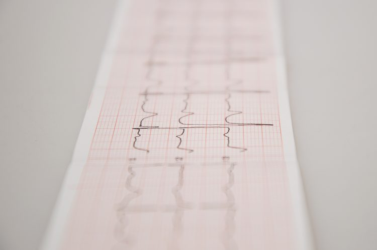 EKG. Foto: iStock/Maryna Ievdokimova