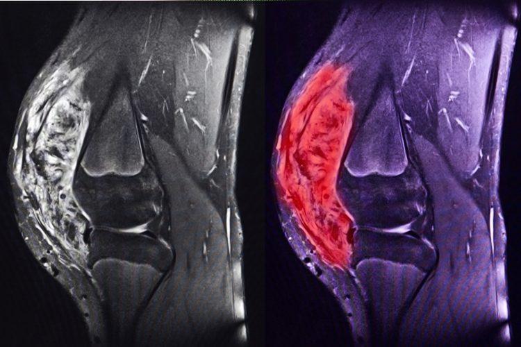 Bild på knäsarkom, tagen med MRI.