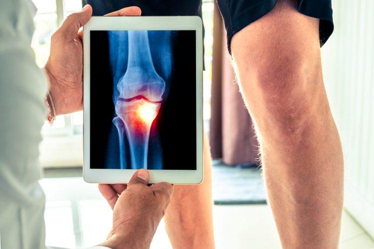 Till höger i bilden ses ett bart knä och en del av underbenet tillhörande en person klädd i svarta shorts. Till vänster ser man axeln och handen på en person klädd i vad som verkar vara en vit rock. Denna person håller upp en läsplatta på vilken man kan se en illustration av en knäled. Leden är färgad i rött vilket ska indikera att den smärtar.