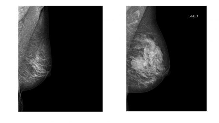 Mammografibild av bröst. Det ena bröstet uppvisar ganska lite täthet, dvs ganska få vita fläckar på röntgenbilden och det andra bröstet ganska mycket täthet, dvs många vita fläckar på bilden. Copyright Sophia Zackrisson.