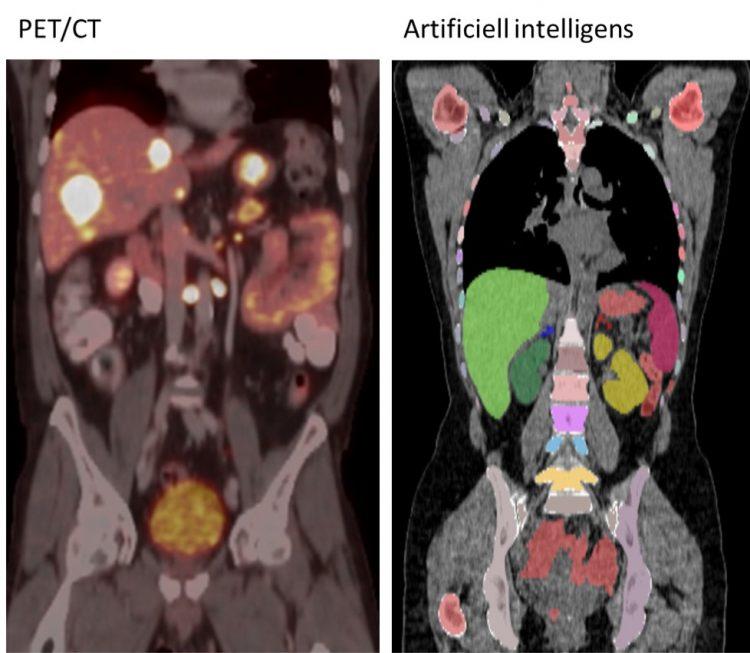 Bilden är en sammansättning av två bilder. Den vänstra visar en kombinerad PET/CT-undersökning med tumörer som lyser i levern. Den högra visar hur den artificiella intelligensen lärt sig rita ut olika organ och skelett inuti kroppen.