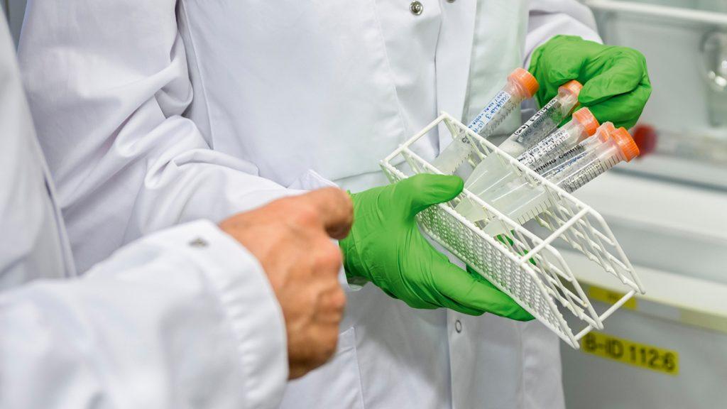 bilden är en detaljbild av en person klädd i vit labbrock och gröna plasthandskar håller i ett provrörsställ med 5 eller 6 provrör i
