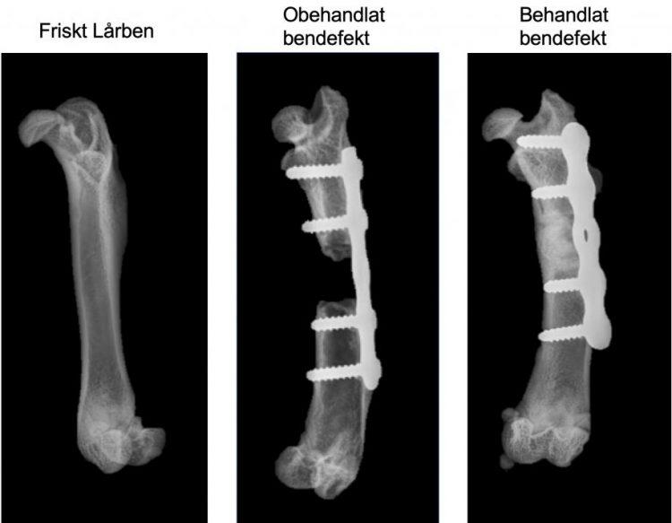 på bilden ses tre röntgenbilder. I den vänstra ses ett frisk lårben helt utan frakturer. Mittenbilden visar en obehandlad bendeffekt där man ser hur det brutna lårbenet, som inte har växt ihop, stabiliseras av en skena. Bilden till höger visar ett behandlat lårben där brottet har växt ihop