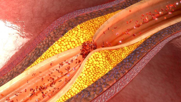 bilden är en illustration som visar ett blodkärl i genomskärning. å ett ställe har det bildats en förträngning av två fettrika plack, en sorts bulor som har bildats innanför inre kärlväggen och som gör att blodet får svårt att passera på det förträngda stället