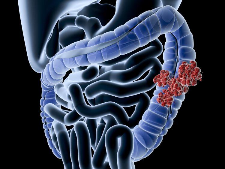 bilden är en illustration av mänskliga tarmar i blått mot en svart bakgrund. Den sista delen av tjocktarmen är beväxt med röda runda utväxter som föreställer cancer.n