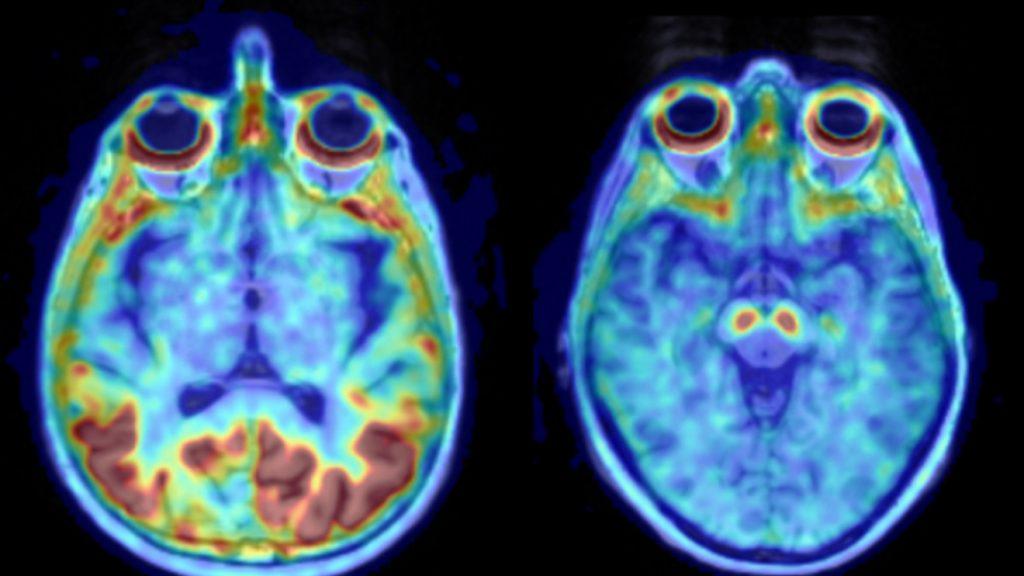 på bilden ses tvärsnitt av två hjärnor uppifrån. Strukturerna är färglagda med olika färger. Tauproteinet ses i rött och man ser betydligt mer av det röda att i den sjuka vänstra hjärnan än i den högra friska