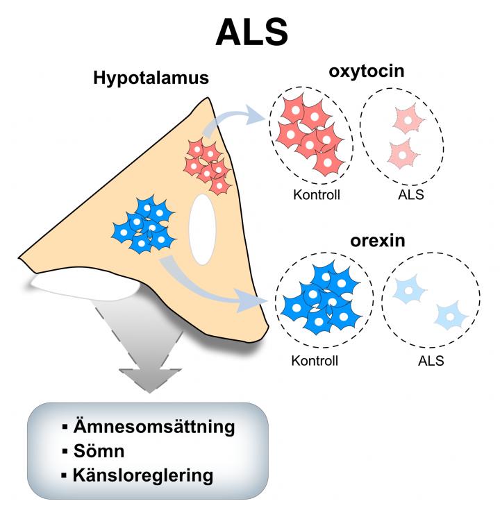 bilden är en schematisk illustration av bildtexten och illustrerar att mängden oxytocin och orexin är minskad hos individer med ALS