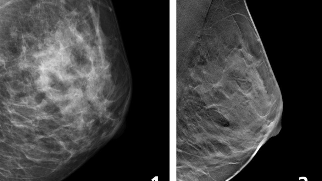 På bilden ses två röntgenbilder av bröst, båda brösten ses från sidan. Den väsntra bilden är tagen med vanlig mammografi, visar färre detaljer än den högra som ä tagen med 3D-teknik