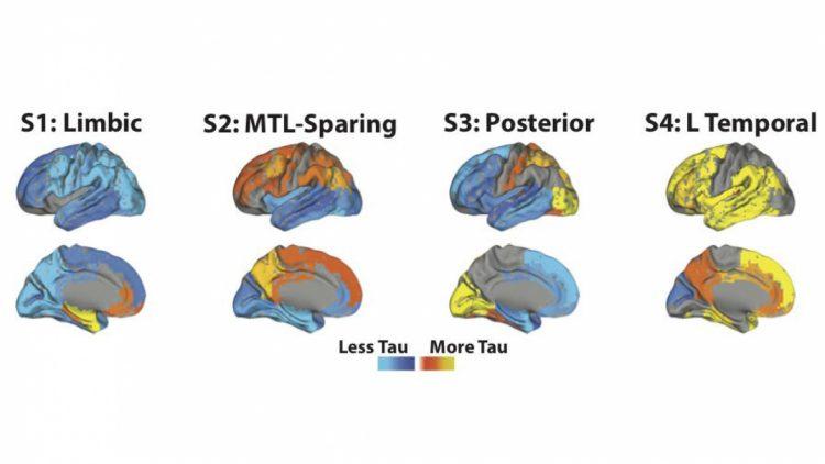 på bilden ses bilder av åtta hjärnor, två för varje subtyp av sjukdomen. De är infärgade i blått över orange till gult där blått visar på lite tau och gult på mycket tau. Bilden visar på distributionen i olika delar va hjärnan beroende på variant.