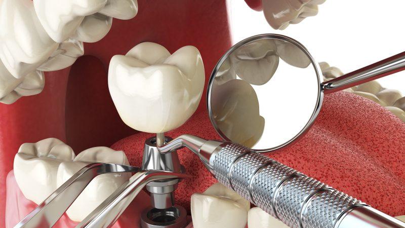3D-illustration över implantat.