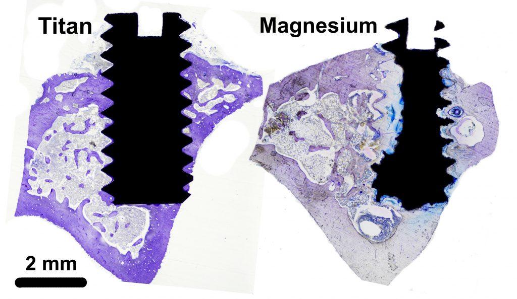 Bilden, som är tagen i ljus-mikroskop, visar skruvar av olika material i ben, två månader efter insättning. Till vänster ses en titanskruv, till höger en magnesiumskruv. Metallen (både titan och magnesium) är svart i bilden, medan benet färgas i lila. Magnesiumskruven har börjat lösas upp och omvandlas till ett benliknande ämne. Foto: Silvia Galli