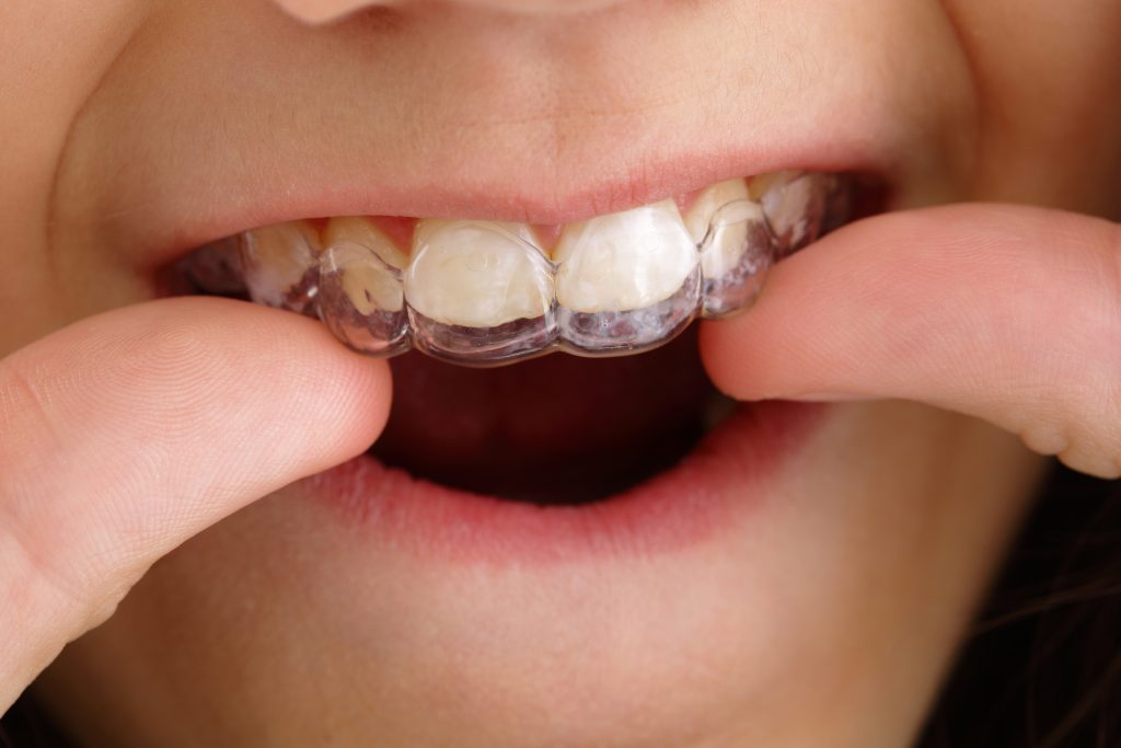 Barn sätter in genomskinlig tandställning.